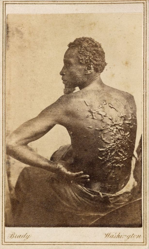 Gordon, a slave whose photos documenting the extreme brutality he survived were popularized in Harper's Weekly.